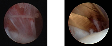 Broad adhesion within the upper joint compartment with signs of severe inflammation. The adhesion is cut with micro scissors under direct arthroscopic vision