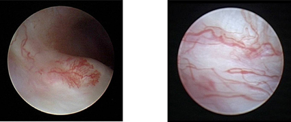 Arthroscopic view of inflamed tissues within the TMJ